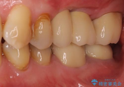 部分矯正を併用した奥歯のインプラント補綴治療の治療後