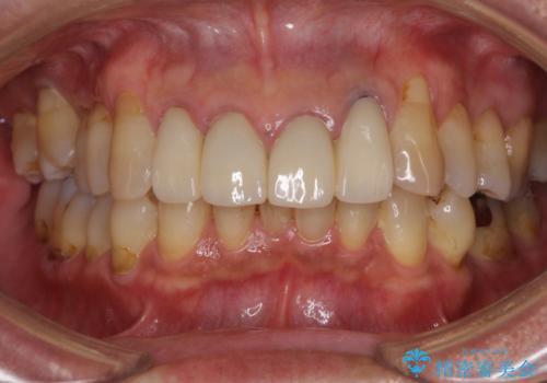 歯が痛い 前歯のセラミック治療の治療前