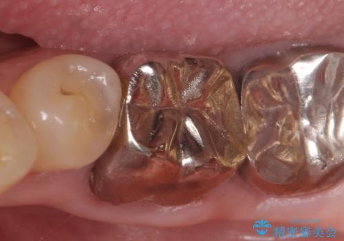 オールセラミッククラウン 外れてしまった銀歯の治療の症例 治療前