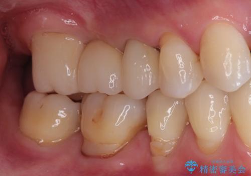 奥歯のオールセラミックブリッジの治療後