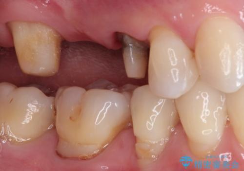 奥歯のオールセラミックブリッジの治療中