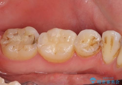 奥歯の虫歯をセラミックインレーにて修復治療の治療後
