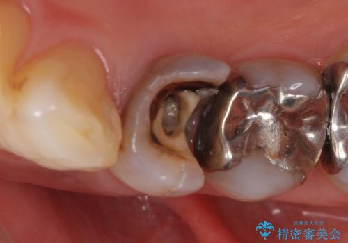 オールセラミッククラウン 疼きの治まらない歯の治療の症例 治療前