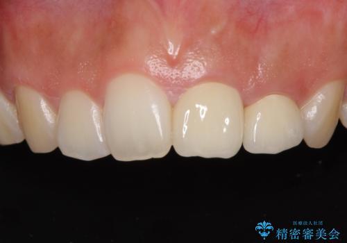 折れてしまって変色した前歯をオールセラミックにの治療後