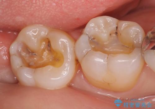 セラミックインレー 古い銀歯をやり直したいの治療中