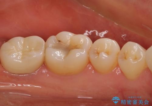 奥歯が割れた 神経が取り除かれた歯のセラミッククラウン治療の治療後