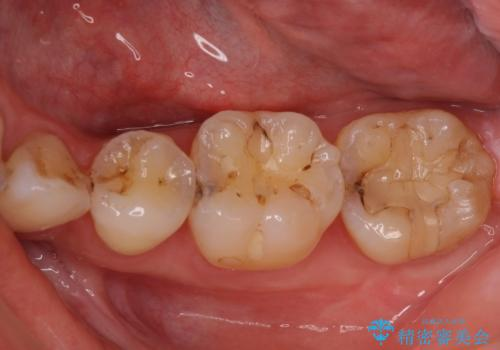 奥歯の虫歯をセラミックインレーにて修復治療の治療前