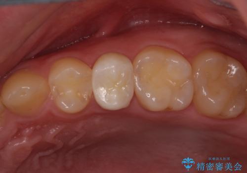 割れた歯を引っ張り出す 右上と左上の虫歯治療の治療後