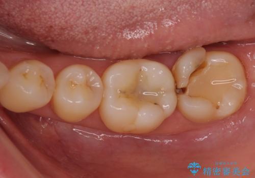 奥歯が割れた 神経が取り除かれた歯のセラミッククラウン治療の治療前