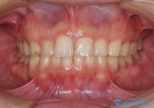 過蓋咬合(オーバーバイト)の症例 治療後