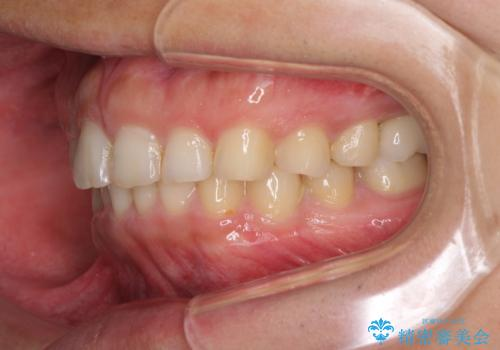 インビザライン矯正とインプラント補綴 深い咬み合わせと奥歯の欠損治療の治療後