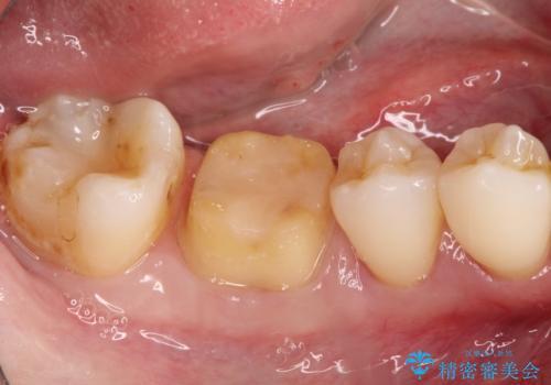 以前治療歯の中が虫歯になっている気がする セラミッククラウンによる再補綴の治療中