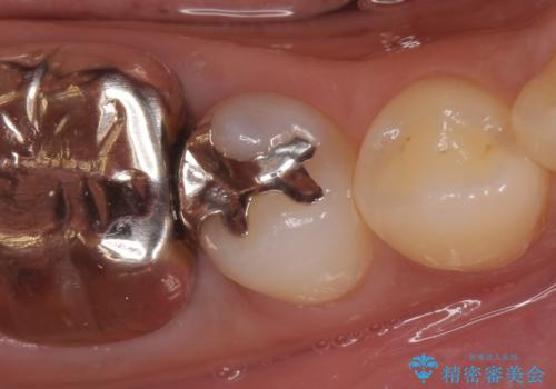 PGA(ゴールド)インレー 深い虫歯の虫歯の治療の症例 治療前