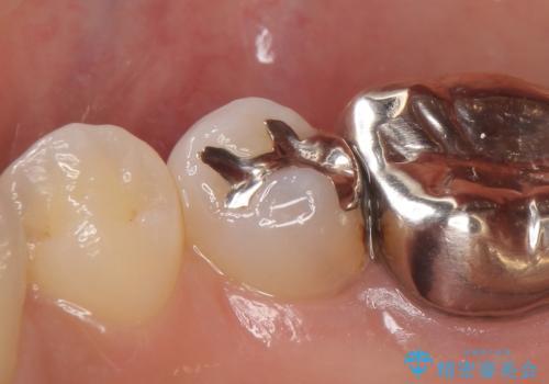 PGA(ゴールド)インレー 深い虫歯の虫歯の治療の治療前