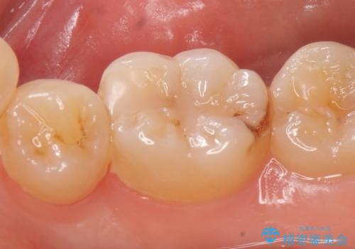 セラミックインレー しみる歯の歯の治療の治療前