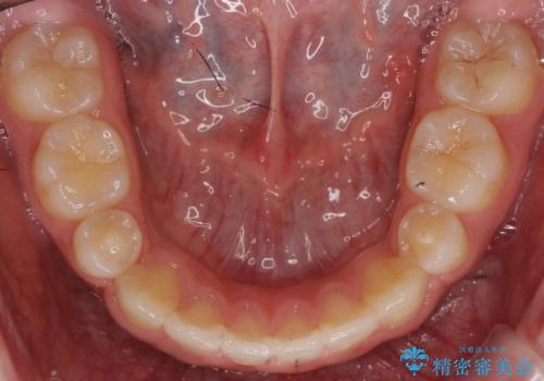 小さいころに前歯を折った がたがたの矯正+変色した前歯をセラミックにの治療後