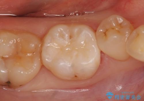 セラミックインレー しみる歯の歯の治療の症例 治療後
