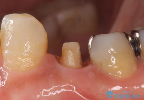 オールセラミッククラウン 疼きの治まらない歯の治療の治療中