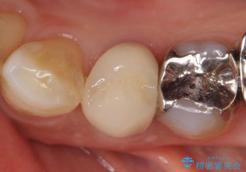 オールセラミッククラウン 疼きの治まらない歯の治療の症例 治療後
