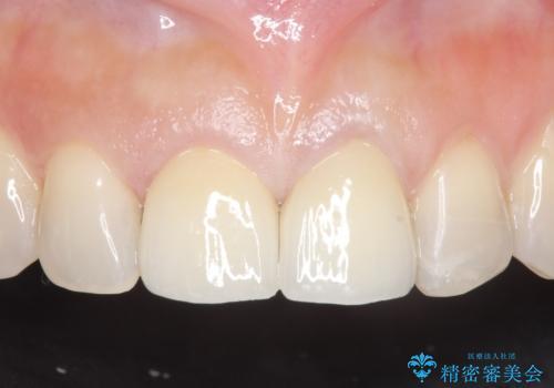 オールセラミッククラウン 変色が気になる前歯の治療の治療後