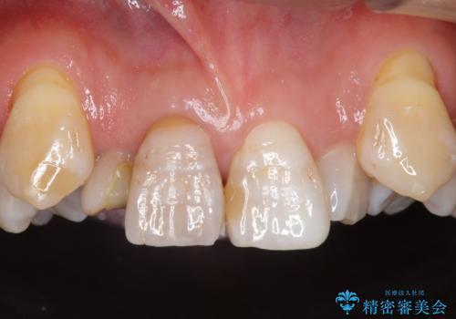 奥に引っ込んでいる歯をセラミックでかぶせたい 補綴前矯正 50代男性の症例 治療前