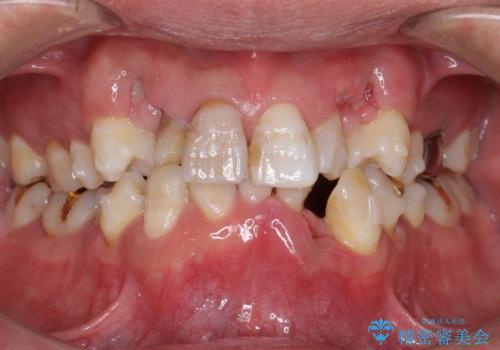 奥に引っ込んでいる歯をセラミックでかぶせたい 補綴前矯正 50代男性の治療中