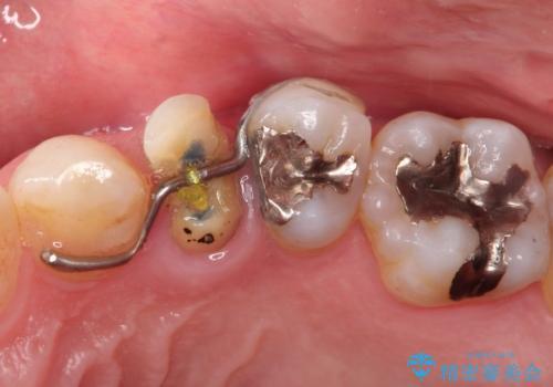 深いむし歯。根本的な治療の治療後