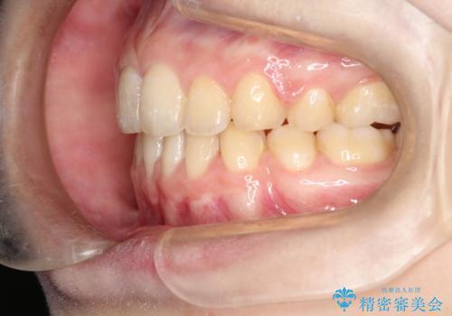口元が出てるの気になる、引っ込めたい ワイヤーによる抜歯矯正で横顔の改善の治療後