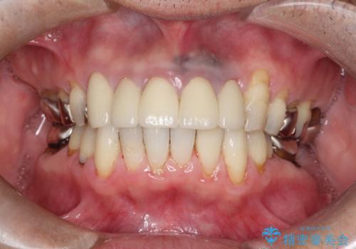 上の前歯の根元が黒い 根の治療を含めたセラミック再治療の症例 治療後