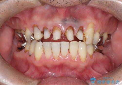 上の前歯の根元が黒い 根の治療を含めたセラミック再治療の治療中