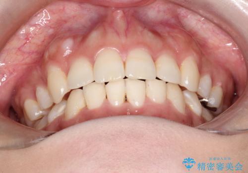 前歯のガタガタと出っ歯が気になる ハーフリンガルによる抜歯矯正の治療後
