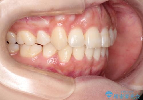 前歯のガタガタと出っ歯が気になる ハーフリンガルによる抜歯矯正の症例 治療後