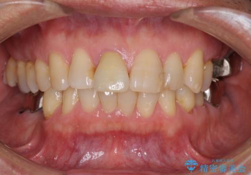 部分矯正を併用した奥歯のインプラント補綴治療の治療前