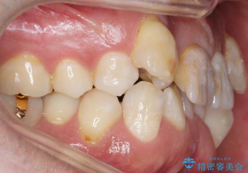 奥に引っ込んでいる歯をセラミックでかぶせたい 補綴前矯正 50代男性の治療前