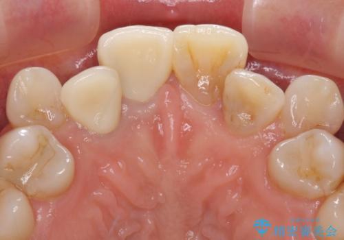 変色した前歯のオールセラミック治療の治療後