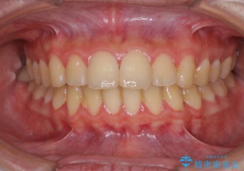口元が出てるの気になる、引っ込めたい ワイヤーによる抜歯矯正で横顔の改善の治療前