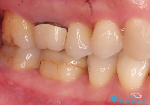 以前治療歯の中が虫歯になっている気がする セラミッククラウンによる再補綴の治療前