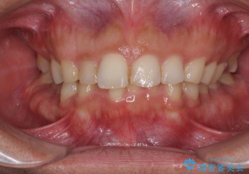 過蓋咬合(オーバーバイト)の症例 治療前
