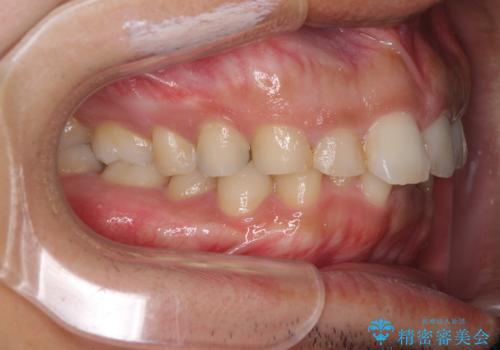 インビザライン矯正とインプラント補綴 深い咬み合わせと奥歯の欠損治療の治療前