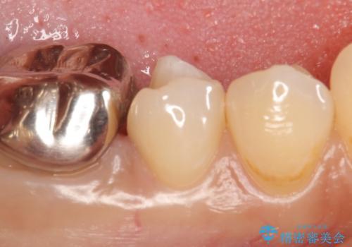 PGA(ゴールド)インレー 深い虫歯の虫歯の治療の治療中