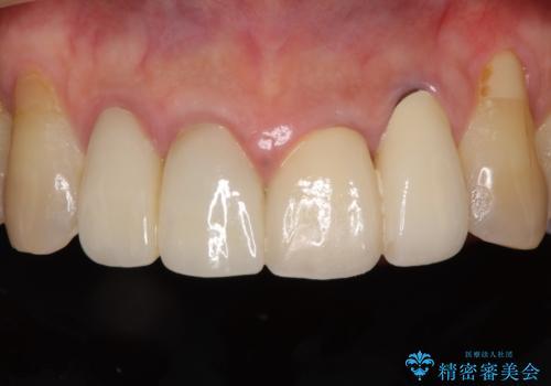 歯が痛い 前歯のセラミック治療の治療後