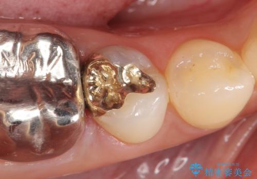 PGA(ゴールド)インレー 深い虫歯の虫歯の治療の症例 治療後
