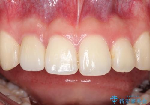前歯が痛い。根管治療~セラミッククラウンの治療後