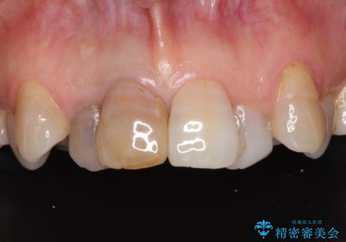 変色した前歯のオールセラミック治療の治療前