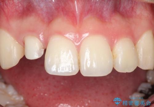 前歯が痛い。根管治療~セラミッククラウンの治療中