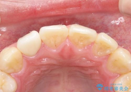 前歯が痛い。根管治療~セラミッククラウンの治療前