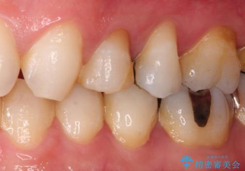 深いむし歯。根本的な治療の治療前