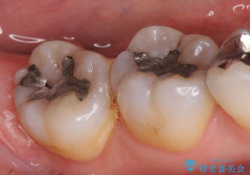 セラミックインレー 古い銀歯をやり直したいの治療前