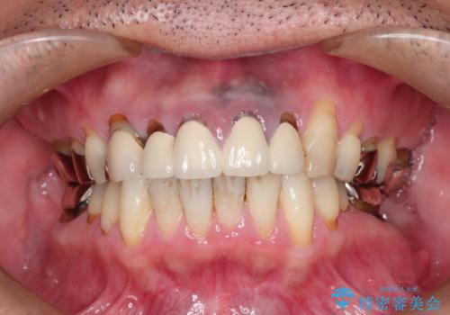 上の前歯の根元が黒い 根の治療を含めたセラミック再治療の症例 治療前
