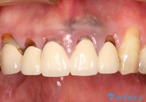 上の前歯の根元が黒い 根の治療を含めたセラミック再治療の治療前
